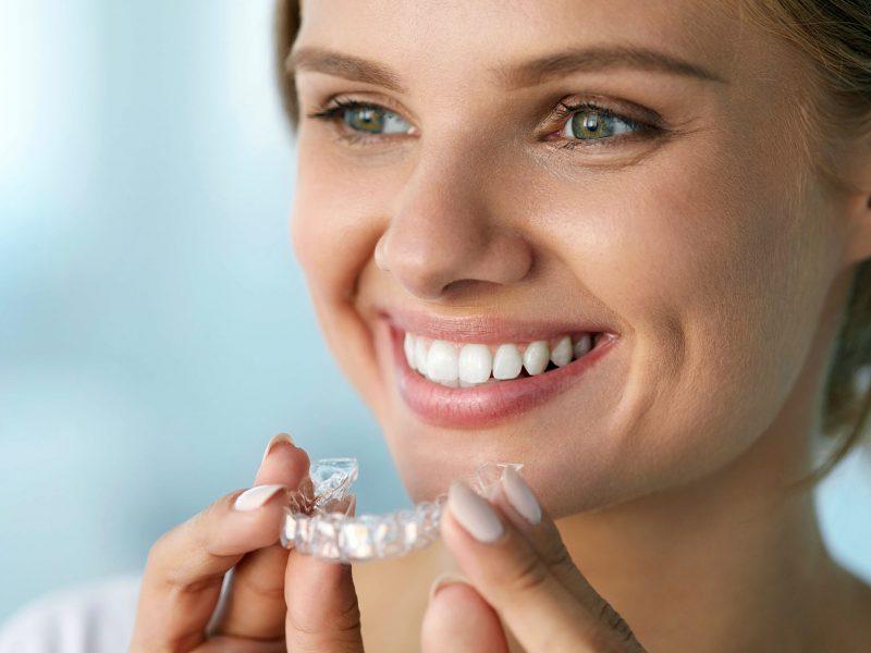 bioclinica-marbella-ortodoncia-invisible-invisalign